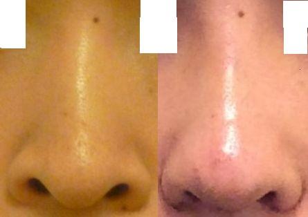 手術前後の鼻画像